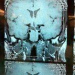 Cirugía endoscópica en el Hospital de Navarra